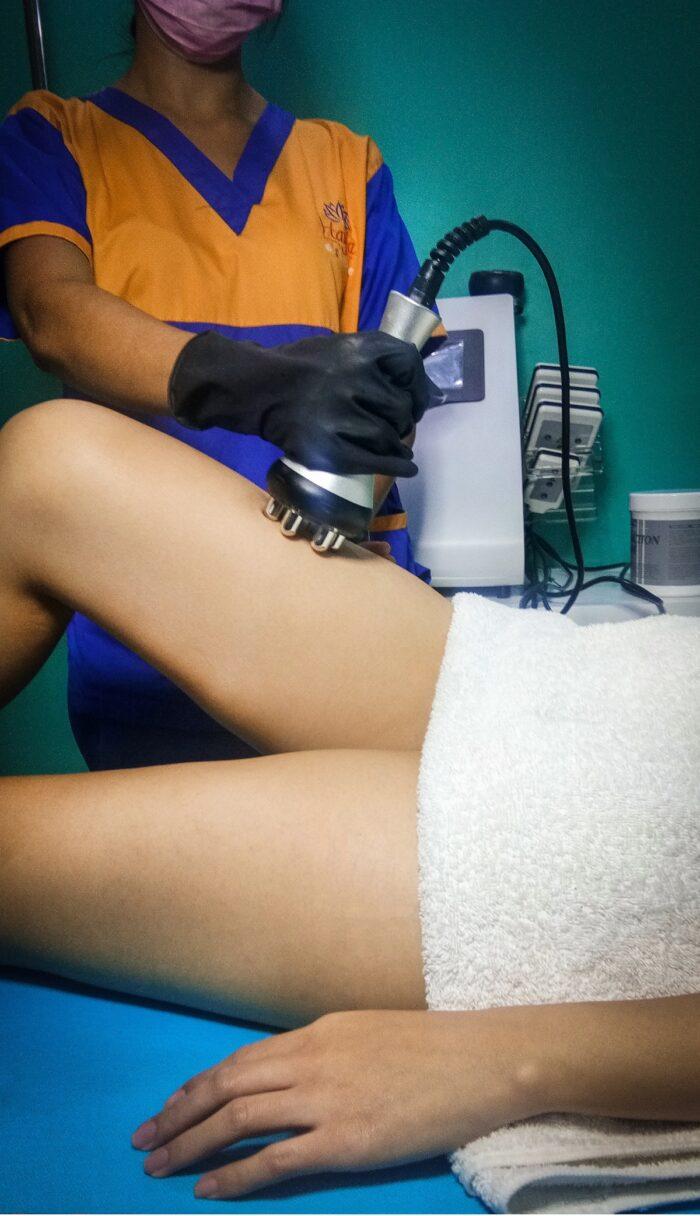 Hayfa Skin & Body Clinic's RF Leg treatment sculpts thighs andor calves into a leaner form.