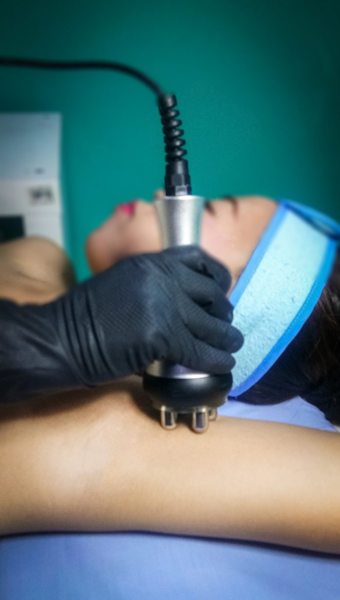Hayfa Skin and Body Clinic's RF Arms treatment result in shapely extremities.